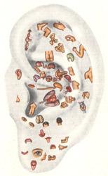 Аурикулотерапия